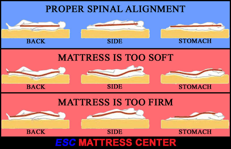 Proper spinal alignment chart for basck, side and stomach sleepers