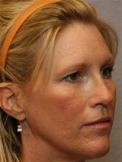 Brow Lift Gallery - Patient 1309938 - Image 1