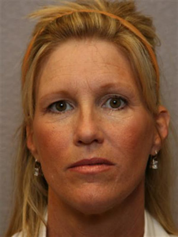 Brow Lift Gallery - Patient 1309938 - Image 3