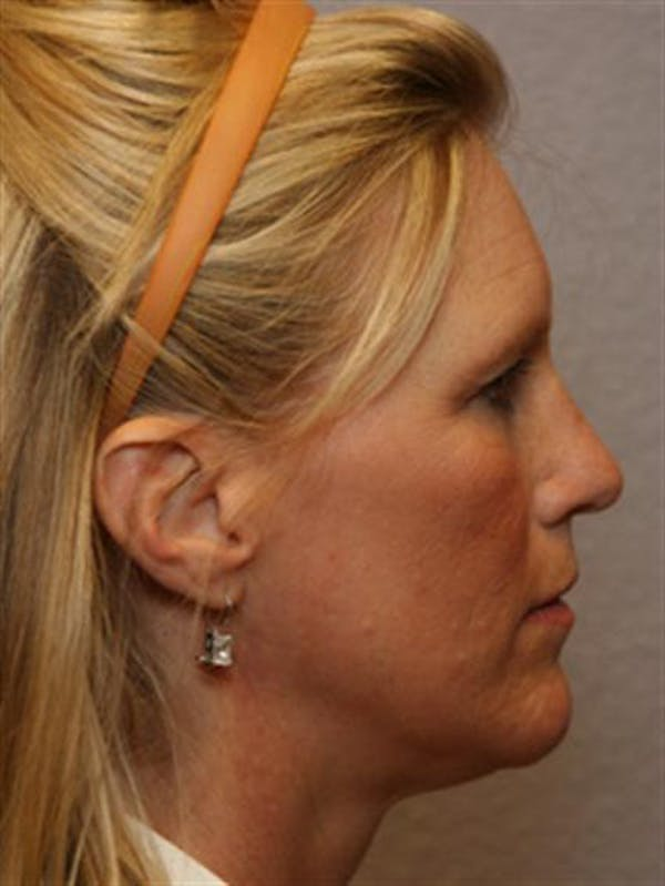Brow Lift Gallery - Patient 1309938 - Image 5