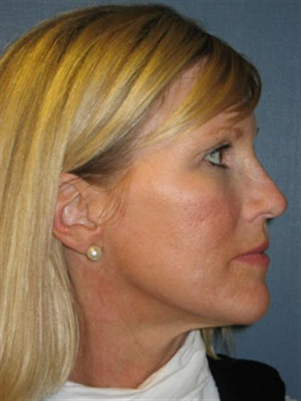 Brow Lift Gallery - Patient 1309938 - Image 6