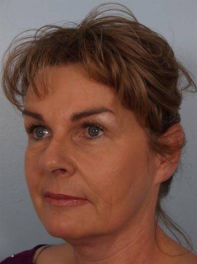 Brow Lift Gallery - Patient 1309942 - Image 6