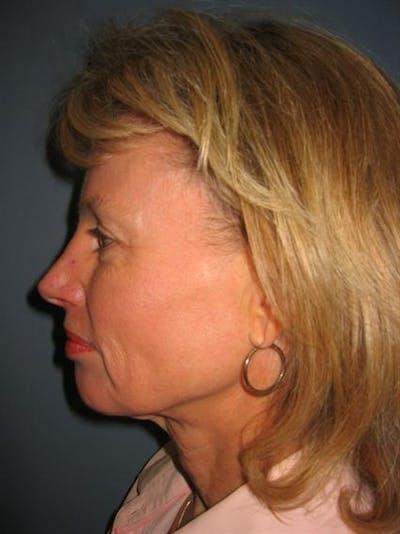 Facelift/Necklift Gallery - Patient 1309946 - Image 1