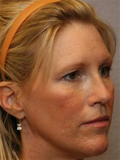 Eyelid Surgery Gallery - Patient 1309979 - Image 1