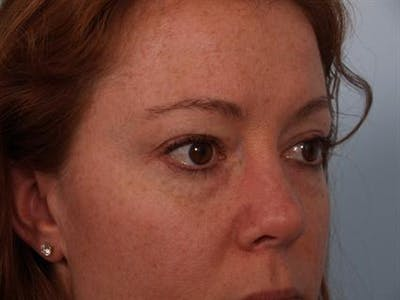 Eyelid Surgery Gallery - Patient 1309981 - Image 1