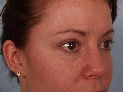 Eyelid Surgery Gallery - Patient 1309981 - Image 2