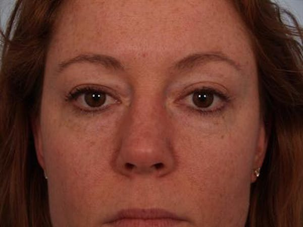 Eyelid Surgery Gallery - Patient 1309981 - Image 3