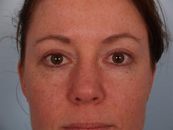 Eyelid Surgery Gallery - Patient 1309981 - Image 4
