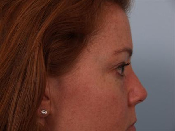 Eyelid Surgery Gallery - Patient 1309981 - Image 5