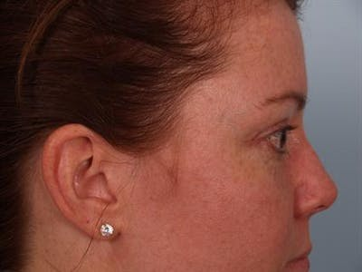 Eyelid Surgery Gallery - Patient 1309981 - Image 6