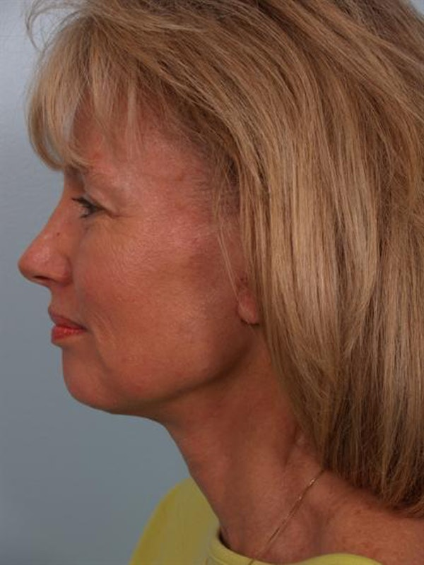 Eyelid Surgery Gallery - Patient 1309982 - Image 2