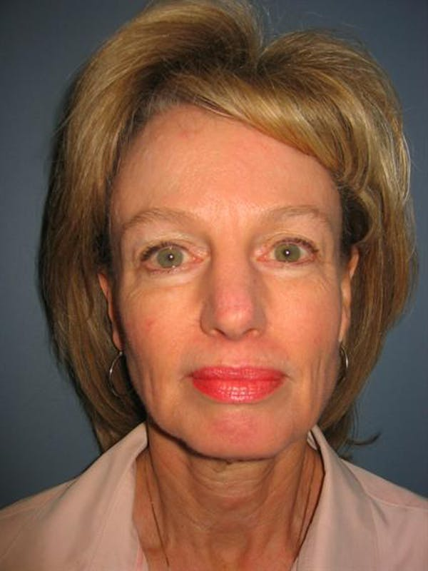 Eyelid Surgery Gallery - Patient 1309982 - Image 3