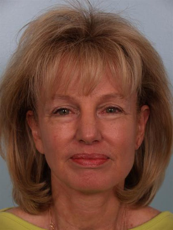 Eyelid Surgery Gallery - Patient 1309982 - Image 4