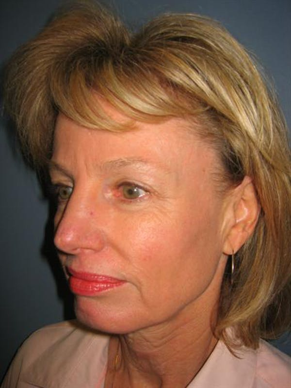 Eyelid Surgery Gallery - Patient 1309982 - Image 5
