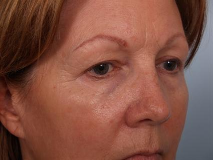 Eyelid Surgery Gallery - Patient 1309983 - Image 1