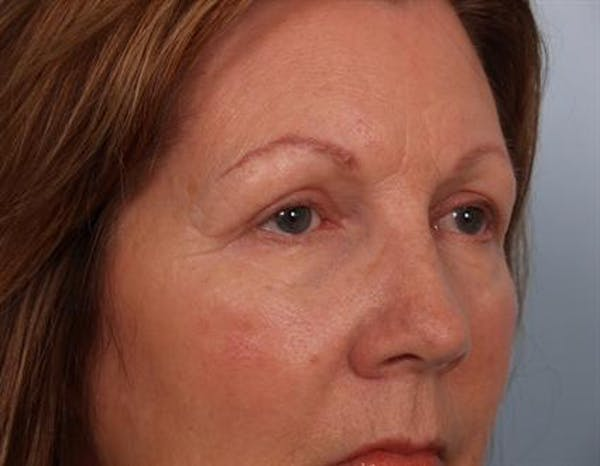 Eyelid Surgery Gallery - Patient 1309983 - Image 2