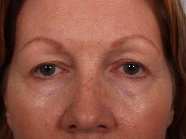 Eyelid Surgery Gallery - Patient 1309983 - Image 3