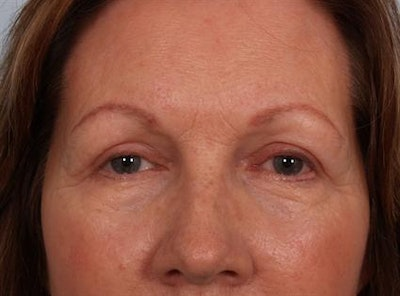 Eyelid Surgery Gallery - Patient 1309983 - Image 4