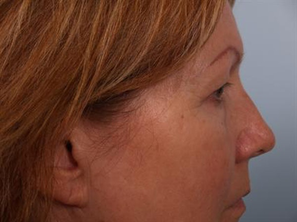 Eyelid Surgery Gallery - Patient 1309983 - Image 5
