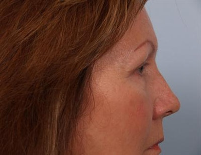 Eyelid Surgery Gallery - Patient 1309983 - Image 6