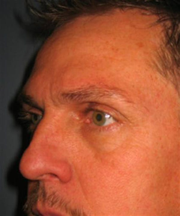Eyelid Surgery Gallery - Patient 1309986 - Image 1