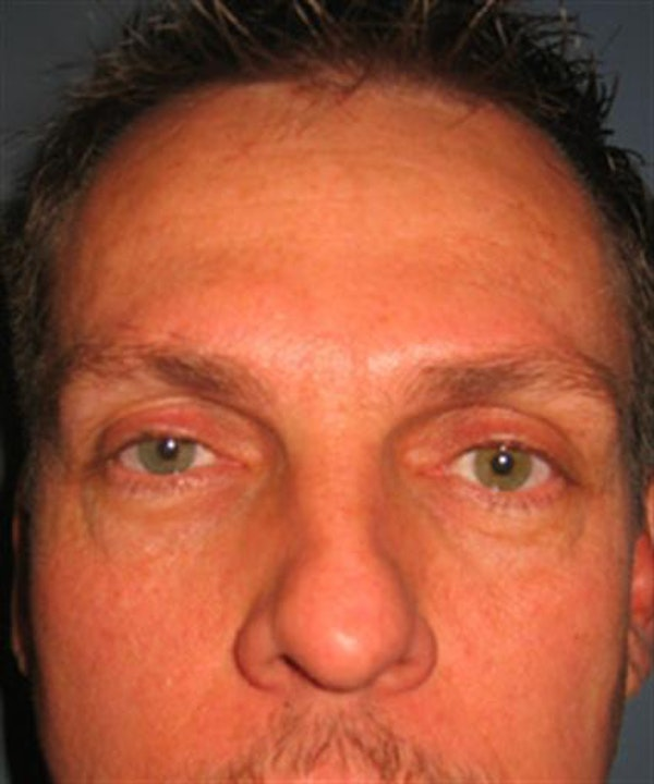 Eyelid Surgery Gallery - Patient 1309986 - Image 3