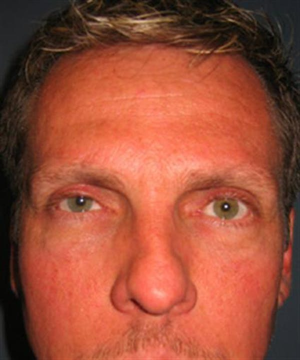 Eyelid Surgery Gallery - Patient 1309986 - Image 4