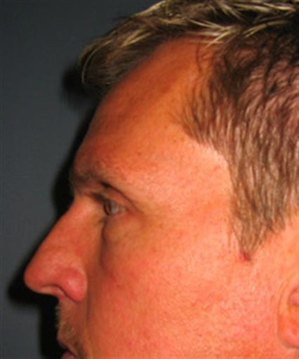 Eyelid Surgery Gallery - Patient 1309986 - Image 6