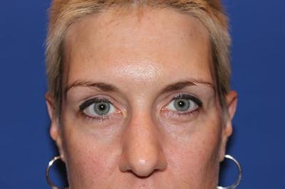 Eyelid Surgery Gallery - Patient 1309987 - Image 1