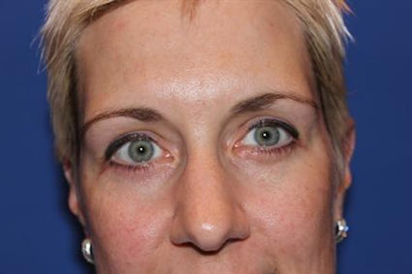 Eyelid Surgery Gallery - Patient 1309987 - Image 2