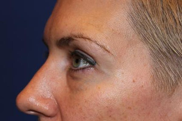 Eyelid Surgery Gallery - Patient 1309987 - Image 3