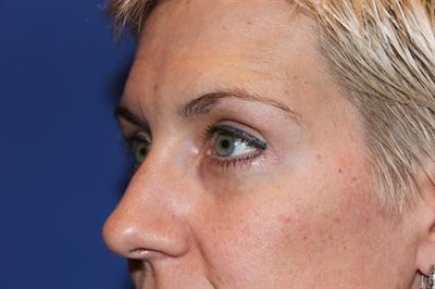 Eyelid Surgery Gallery - Patient 1309987 - Image 4