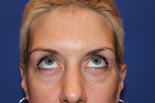 Eyelid Surgery Gallery - Patient 1309987 - Image 5