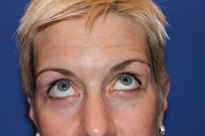 Eyelid Surgery Gallery - Patient 1309987 - Image 6