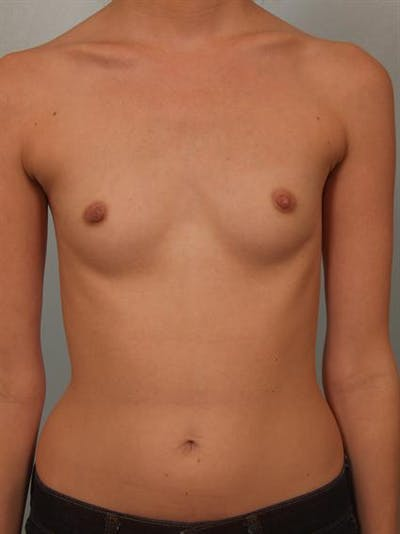 Breast Augmentation Gallery - Patient 1309995 - Image 1