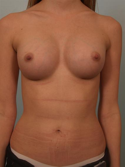 Image1 - Before and after image of Breast Augmentation by Dr. Cohen.