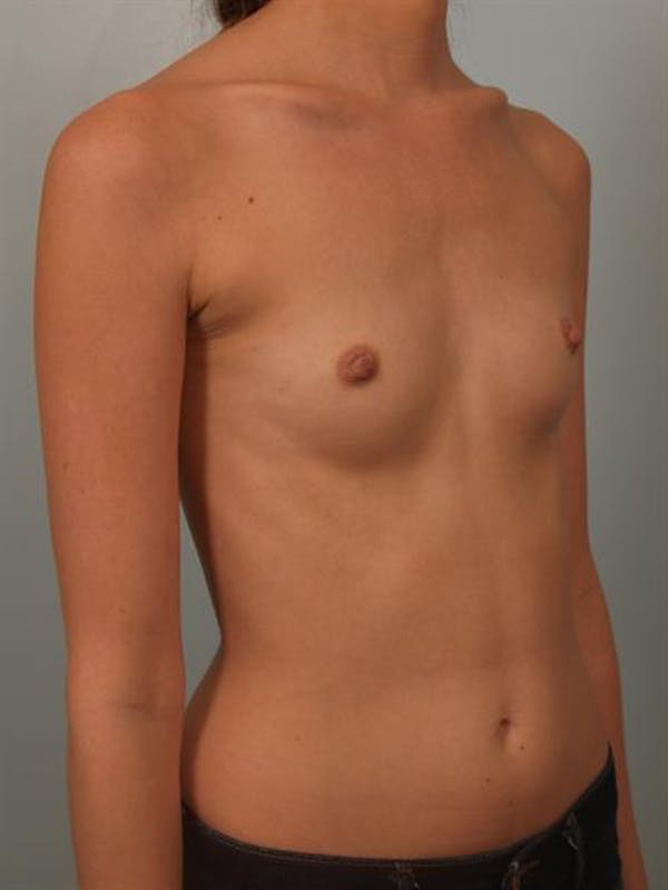Breast Augmentation Gallery - Patient 1309995 - Image 3