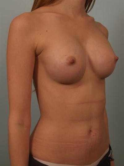 Breast Augmentation Gallery - Patient 1309995 - Image 4