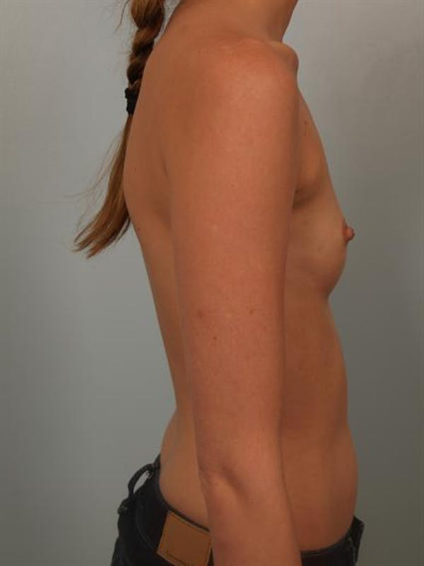 Breast Augmentation Gallery - Patient 1309995 - Image 5