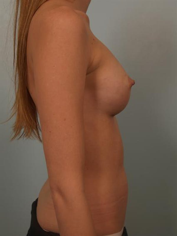 Breast Augmentation Gallery - Patient 1309995 - Image 6