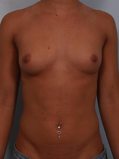 Breast Augmentation Gallery - Patient 1309996 - Image 1