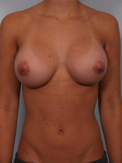 Image2 - Before and after image of Breast Augmentation by Dr. Cohen.