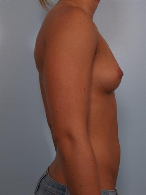Breast Augmentation Gallery - Patient 1309996 - Image 3