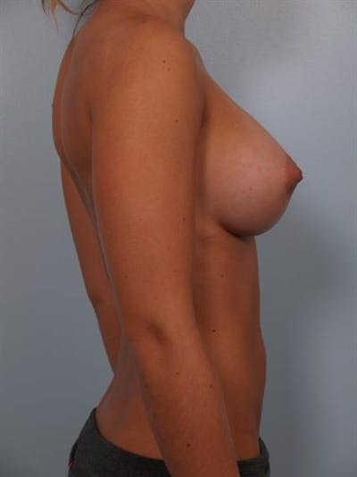 Breast Augmentation Gallery - Patient 1309996 - Image 4