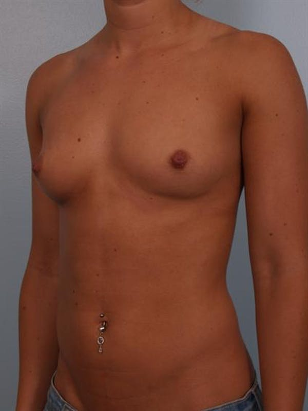 Breast Augmentation Gallery - Patient 1309996 - Image 5
