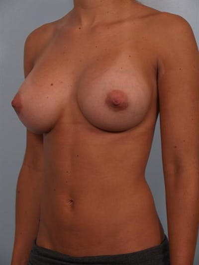Breast Augmentation Gallery - Patient 1309996 - Image 6