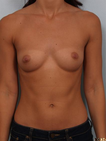 Image3 - Before and after image of Breast Augmentation by Dr. Cohen.