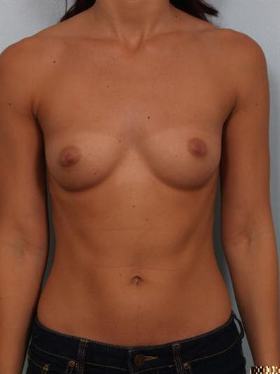 Breast Augmentation Gallery - Patient 1309997 - Image 1