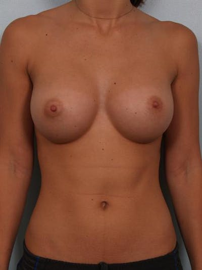 Breast Augmentation Gallery - Patient 1309997 - Image 2