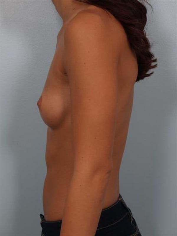 Breast Augmentation Gallery - Patient 1309997 - Image 3